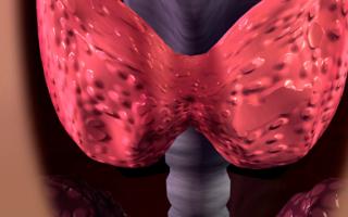 Народные средства от больной щитовидки с мёдом и грецкими орехами