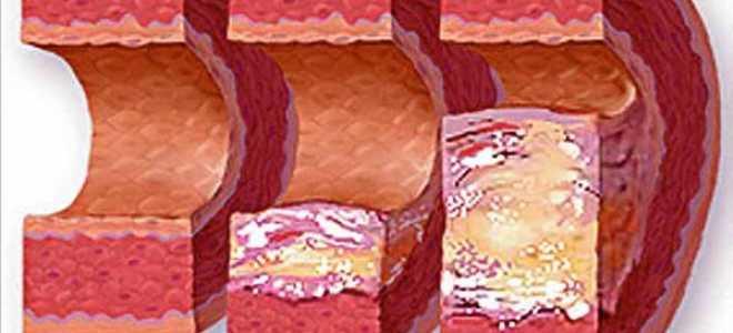 Травы для снижения уровня холестерина в крови